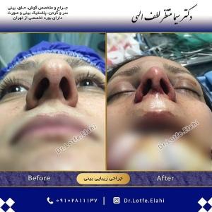 جراحی-بینی-15