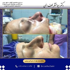 جراحی-بینی-25