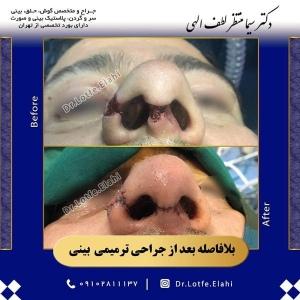 جراحی-ترمیمی-بینی